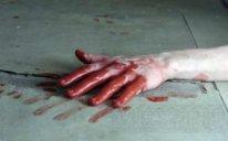 Dağüstü parkda intihara cəhd: 35 yaşlı kişi damarlarını kəsdi