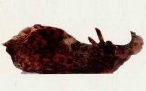 Altsheymer xəstəliyinin müalicəsində mühüm mərhələ