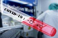 Azərbaycanda daha 43 nəfər koronavirusa yoluxub