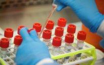 Azərbaycanda daha 132 nəfər koronavirusa yoluxub, 78 nəfər sağalıb