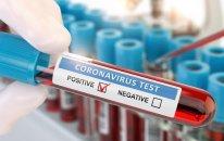 Azərbaycanda daha 556 nəfər koronavirusa yoluxub, 7 nəfər ölüb