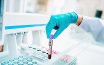 Azərbaycanda daha 559 nəfər koronavirusa yoluxub, 7 nəfər vəfat edib