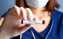 Azərbaycanda daha 241 nəfər koronavirusa yoluxub, 647 nəfər sağalıb