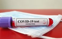 Ermənistanda koronavirusa yoluxanların sayı 39 mini ötdü