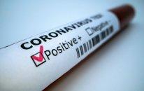 Koronavirusdan ölən jurnalistlərin sayı açıqlandı