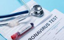 Azərbaycanda koronavirusla bağlı götürülən testlərin sayı 5 milyonu ötdü