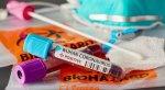 İTV-nin daha bir əməkdaşı koronavirusa yoluxub