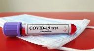 İranda daha 2 634 nəfər COVID-19-a yoluxdu