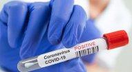Gürcüstanda koronavirusa yoluxanların sayı yenə artdı