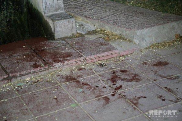 Bakıda 18 yaşlı gəncə 8 bıçaq xəsarəti yetirildi – FOTO