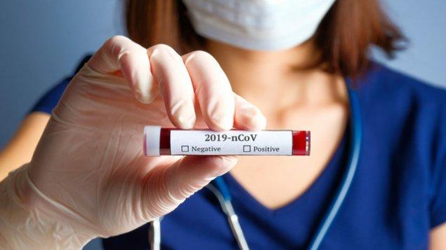 Azərbaycanda daha 78 nəfər koronavirusa yoluxub