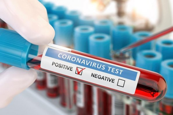 Daha bir jurnalist koronavirusa yoluxub