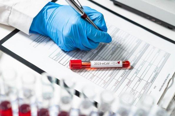 Koronavirusa yoluxan xəstələrlə bağlıRƏSMİ AÇIQLAMA