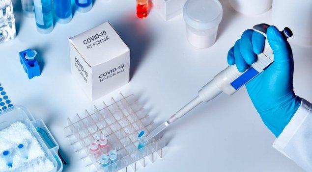 Ermənistanda koronavirusa yoluxanların sayı 41 mini ötdü